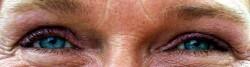 Augen_08_2014