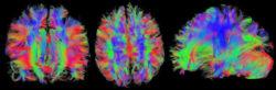Narkose Gehirn MRT Kopf brain
