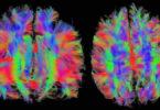 Gehirn-MRT-Kopf-brain